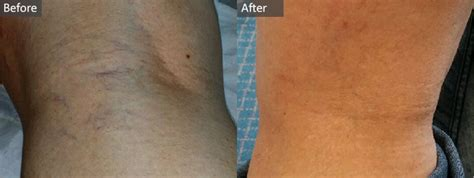 Sclerotherapy Treatment: Your Guide   Aurora Skin Clinics