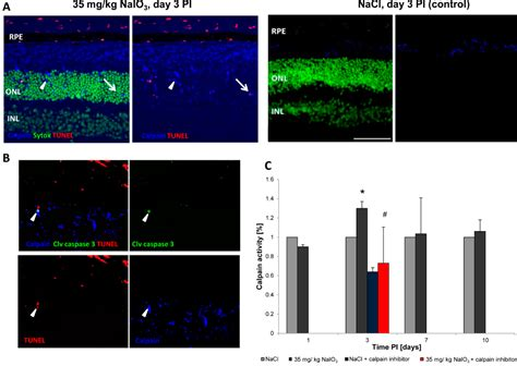 IJMS   Free Full-Text   Retinal Cell Death Caused by