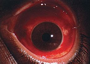 Prevention and Treatment of Common Eye Injuries in Sports